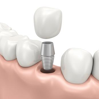 dental implants mount pleasant sc