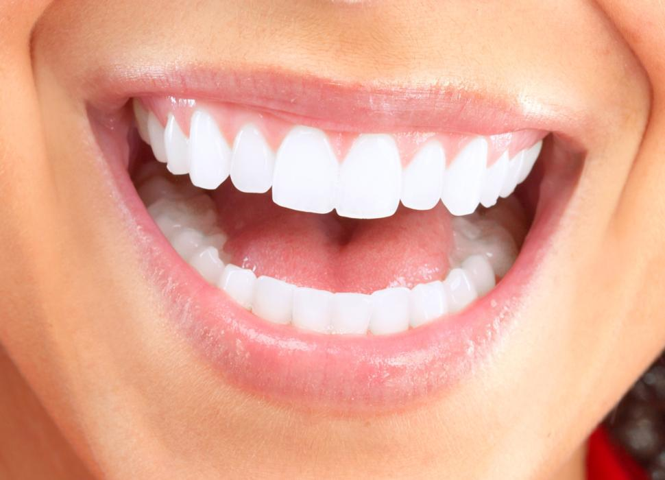 extreme teeth whitening mount pleasant