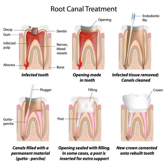 Root Canal Mount Pleasant SC