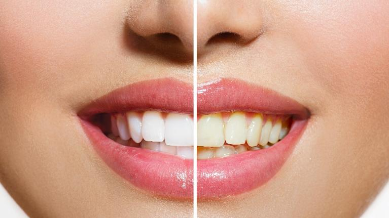 Before and after KöR Whitening