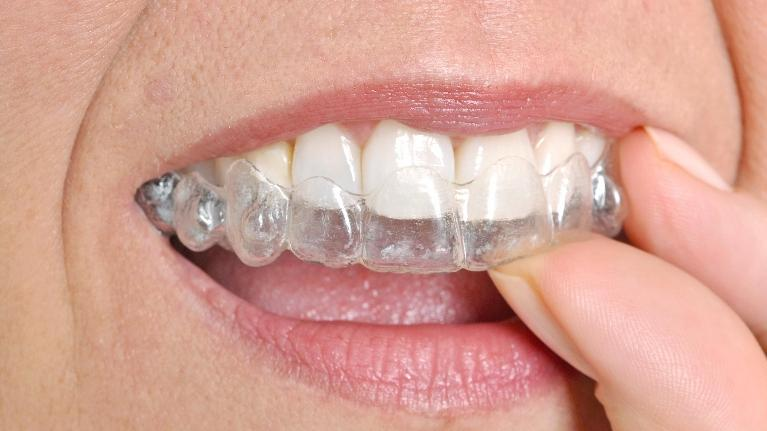 Adult Orthodontic Options in Charleston SC