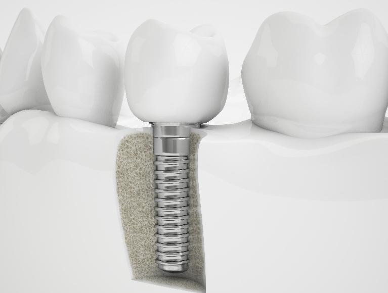 Dental Implants Charleston SC