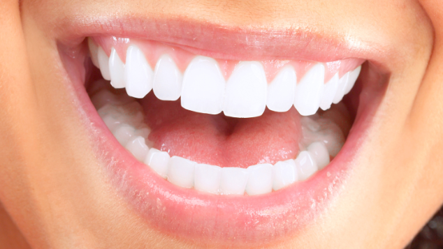 teeth whitening | dentist mount pleasant sc