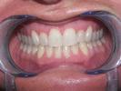 Six-Month-Braces-After-Image