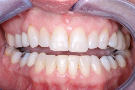 image of lower teeth after six month braces mt pleasant sc