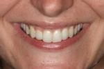 Image of teeth after Six Month Braces Mt Pleasant SC