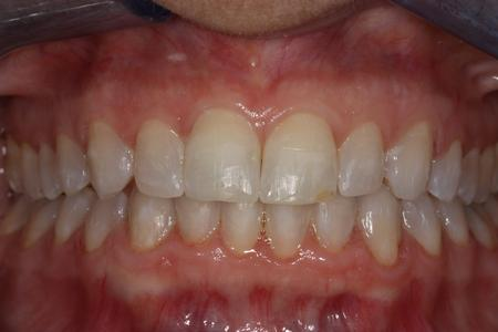 image of teeth after six month braces in mt pleasant sc