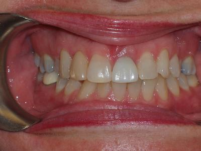 image of teeth before dental veneers in mt pleasant sc