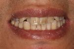 image of teeth before six month braces in mt pleasant sc