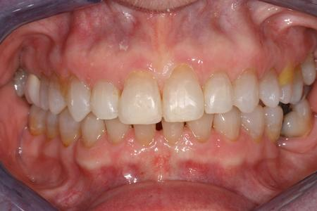 Six Month Braces To Correct Gaps
