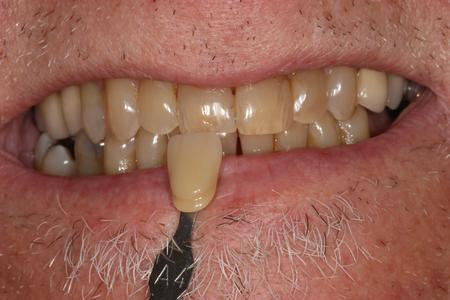 teeth before KOR deep bleaching mt pleasant sc