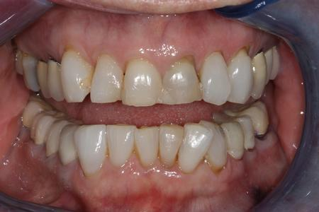 Image of teeth before porcelain veneers in mt pleasant sc