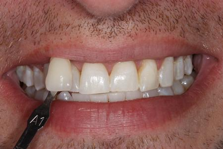 image of the same teeth after KOR whitening mt pleasant sc