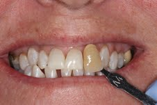 image of teeth after deep bleaching