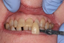 image of teeth before deep bleaching