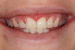 image of the same teeth after six month braces in mt pleasant sc