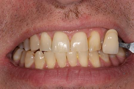 image of teeth before KOR whitening mt pleasant sc