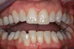 image of lower teeth before six month braces mt pleasant sc