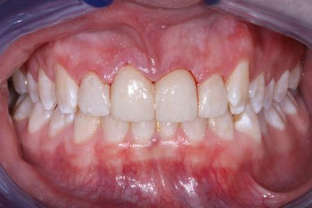 Accidents Happen!