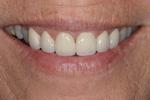 Cosmetic-Crowns-by-Dr-Jason-Annan-After-Image