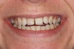 Six-Month-Braces-Before-Image