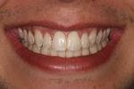 picture of same teeth after six month braces mt pleasant sc