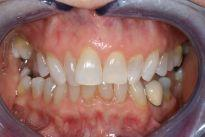 image of teeth before six month braces | mt pleasant sc