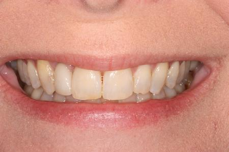 image of same teeth after orthodontics mt pleasant sc