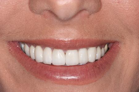 image of same teeth after dental veneers in mt pleasant sc