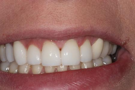 image of the same teeth after dental veneers in mt pleasant sc