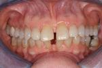 image of teeth with gaps before six month braces mt pleasant sc