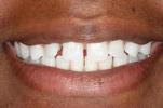 Six-Month-Braces-Example-4-Before-Image