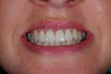 image of teeth after dental veneers in mt pleasant sc