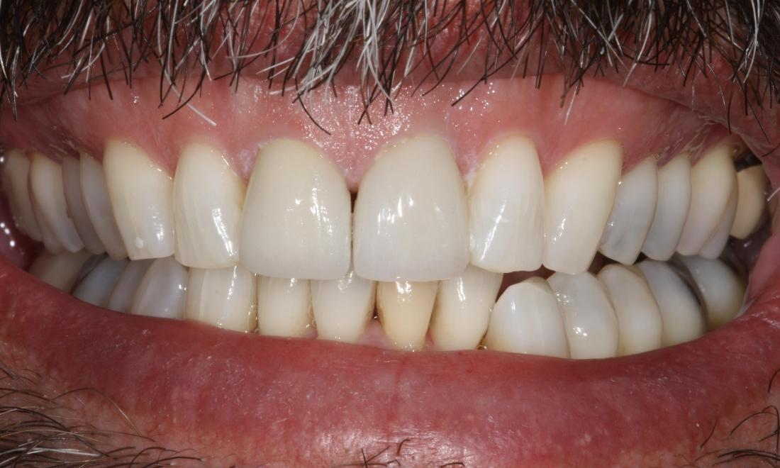 picture of same teeth after veneers and bleaching in mt pleasant sc