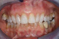 image of teeth after six month braces | mt pleasant sc