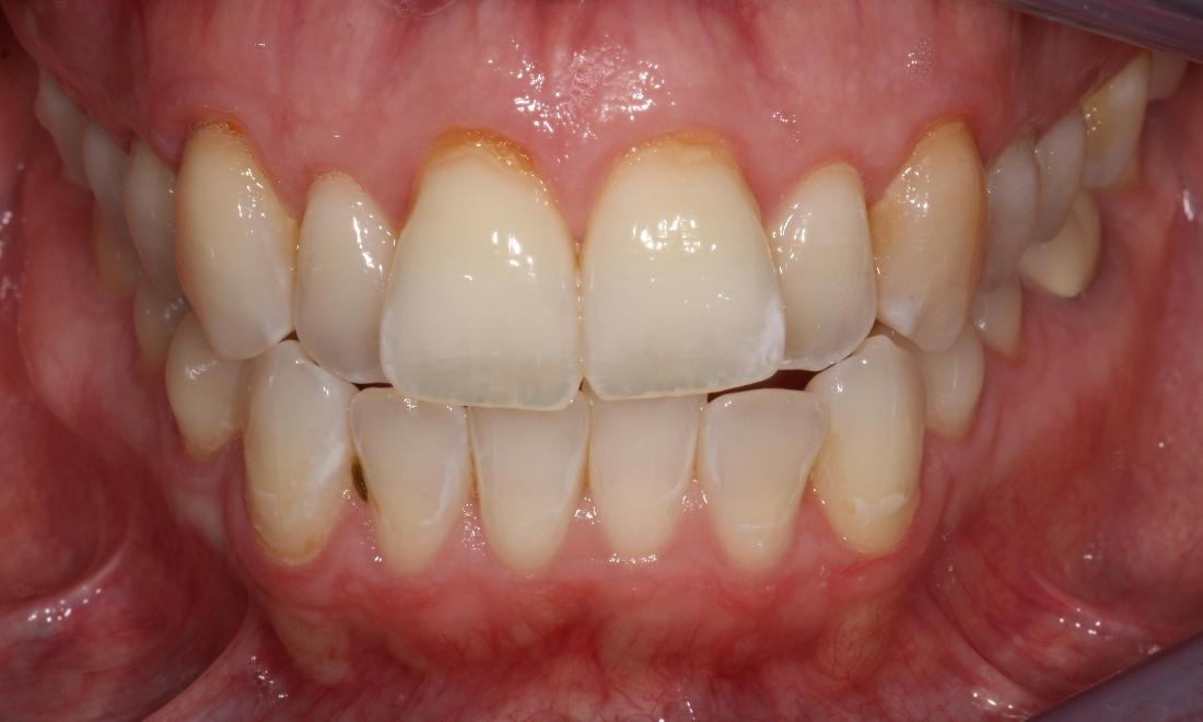 image of teeth before six month braces