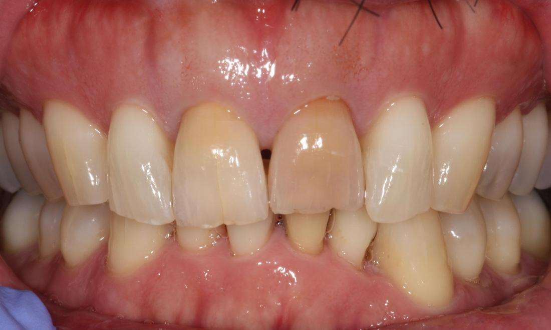 picture of teeth before veneers and bleaching