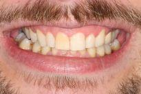 picture of teeth after six month braces mt pleasant sc