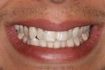 picture of teeth before six month braces mt pleasant sc