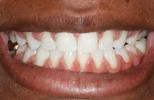 Six-Month-Braces-Example-4-After-Image