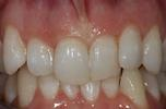 Image of teeth before Six Month Braces Mt Pleasant SC