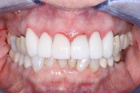 image of teeth after porcelain veneers in mt pleasant sc