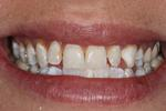 A-GREAT-veneer-case-Before-Image