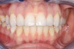 image of same teeth after six month braces in mt pleasant sc