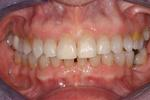 image of teeth with gaps after six month braces mt pleasant sc