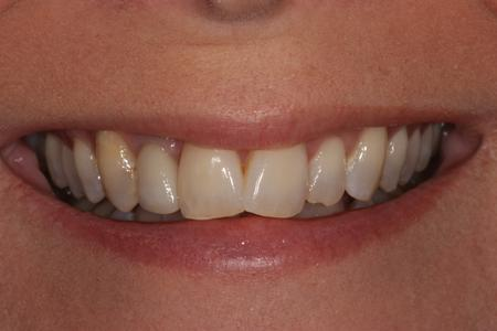 image of teeth before orthodontics