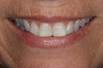 Cosmetic-Crowns-by-Dr-Jason-Annan-Before-Image