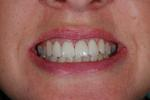 Amazing-Veneers-by-Jason-Annan-After-Image
