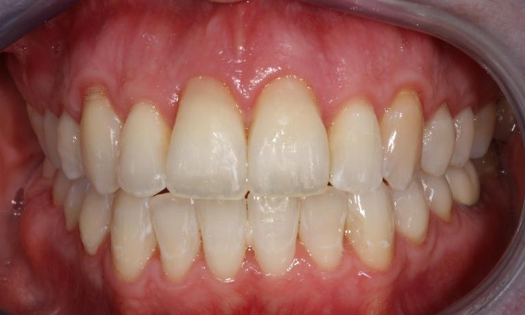 image of the same teeth after 6 month braces